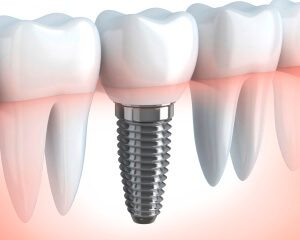 dental-implants-at-beltran-periodontics-in-orlando-fl