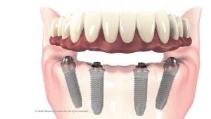 full-mouth-implants-at-beltran-periodontics-in-orlando-fl